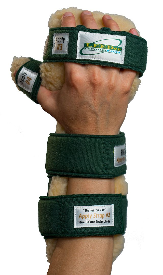 Pro-Rest Hand Orthosis